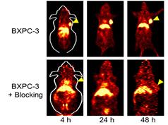 PET Imaging in Pancreatic Cancer